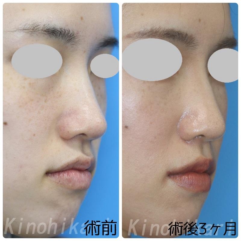 【鼻翼縮小】内側切除で小鼻を小さく 20代女性【症例No.29Y0000342】