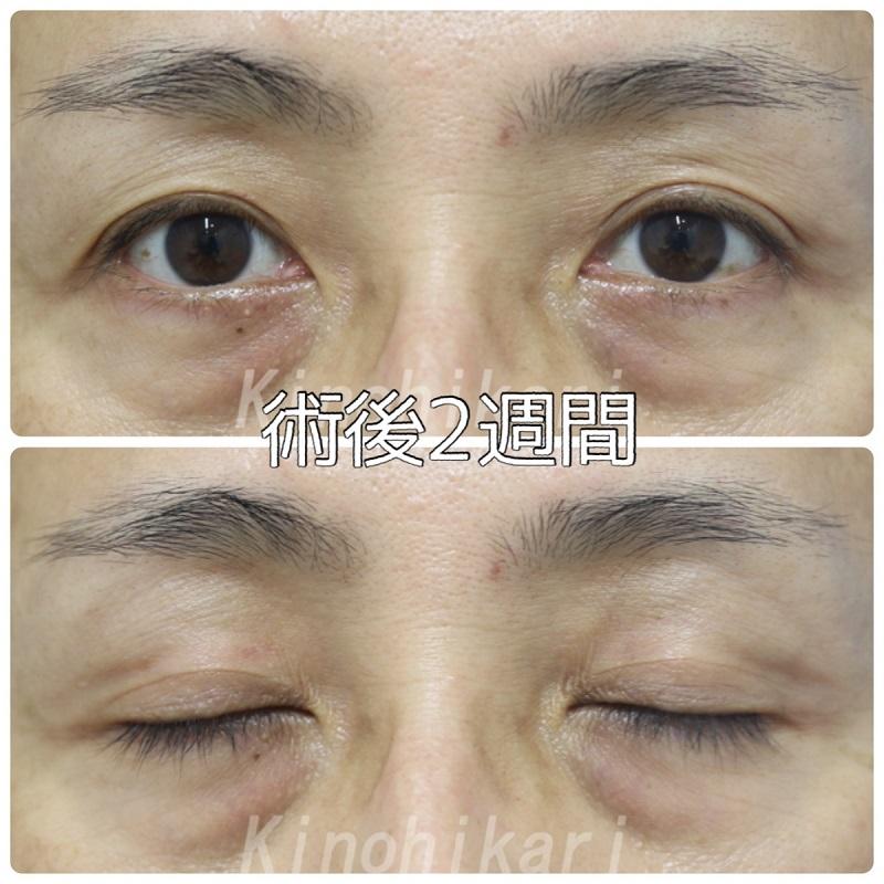 【目の上のくぼみ】目の上の凹みとしわ 40代男性【症例No.29Y0000345】