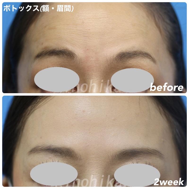 【ボトックス注射】眉間と額の表情ジワ改善 50代女性【症例No.29Y0000352】