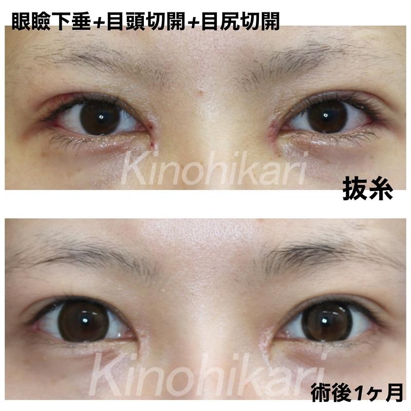 【眼瞼下垂+目頭+目尻切開】目を大きくしたい 20代女性【症例No.29Y0000356】