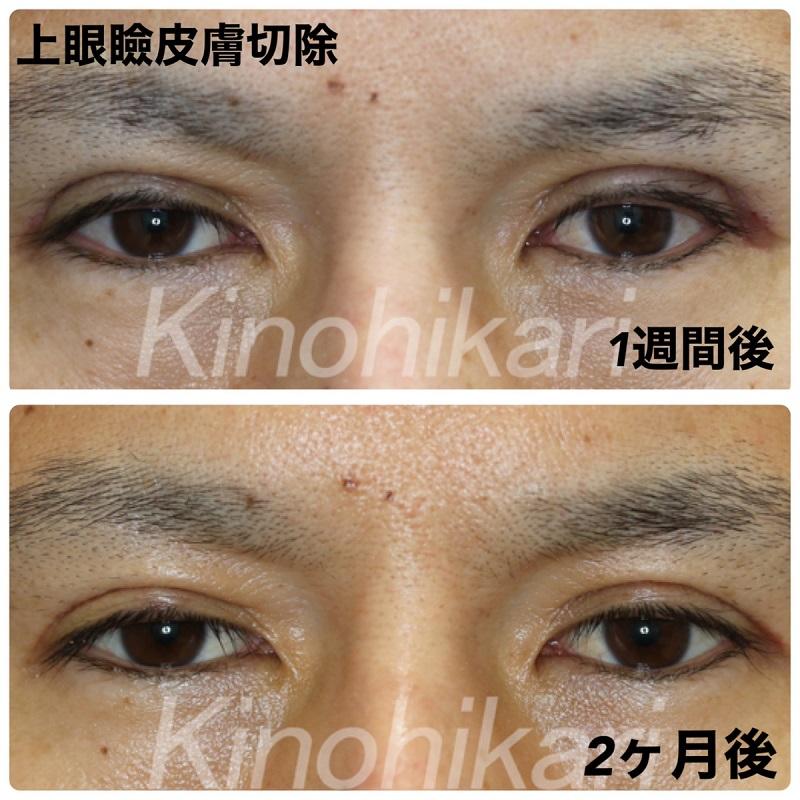 【上眼瞼皮膚切除】年齢と共に二重幅が狭くなり目尻のタルミが気になりだした 30代男性【症例No.29Y0000365】