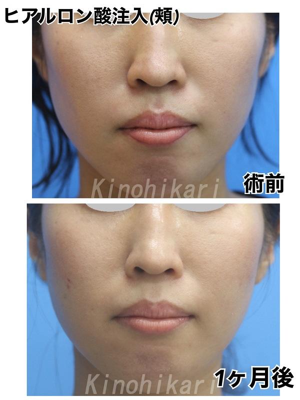 【頬ヒアルロン酸】年齢と共にコケ出した頬をふっくらと 30代女性【症例No.29Y0000363】