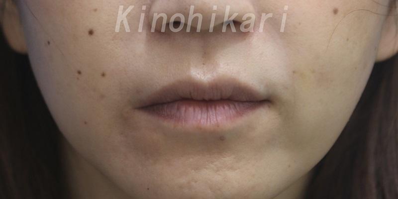 【ヒアルロン酸口角外側】口角外側の浅いしわを改善 40代女性【症例No.29H0000381】
