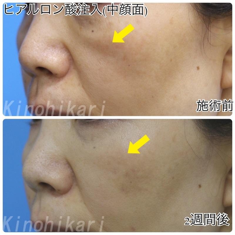 【ヒアルロン酸中顔面】ゴルゴ線による老け顔改善 50代女性【症例No.29H0000372】