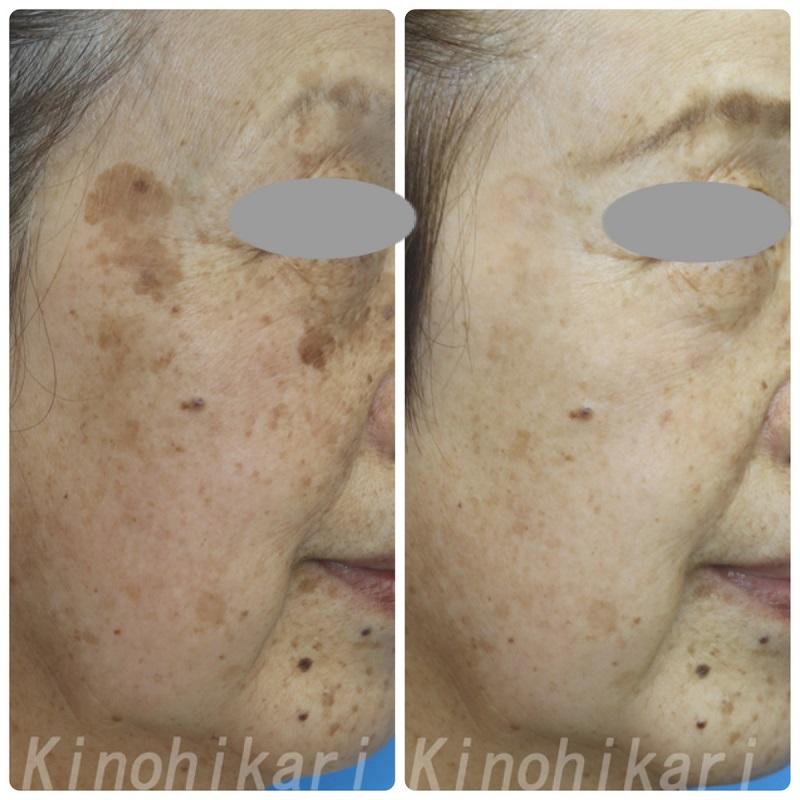 【5分間シミ取り放題】両頬・こめかみの大小さまざまなシミ 70代女性【症例No.29H0000375】