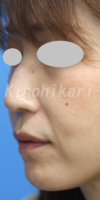 【ヒアルロン酸口角外側】口角外側の浅いしわを改善 40代女性【症例No.29H0000381】②